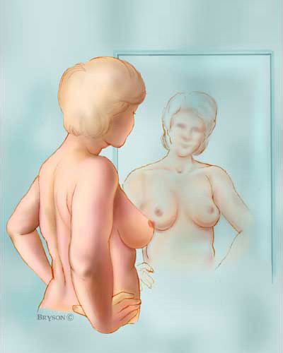 Breast1a